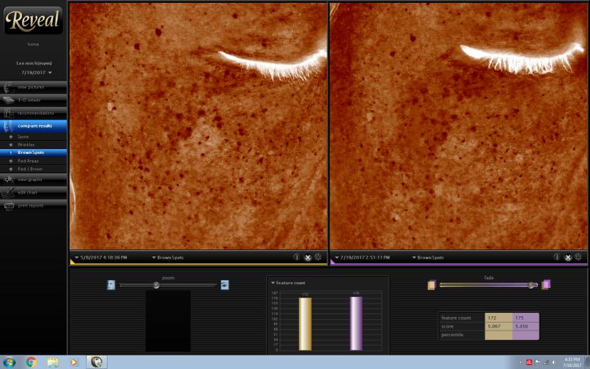 MedLite Pigment Treatment